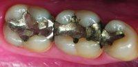 tenner med gammel amalgam