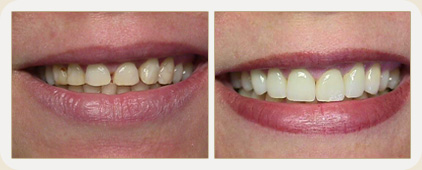 før og etterbildet av tenner med porselenfasade