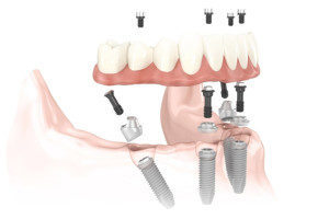 illustrasjon av tenner med tannimplantat